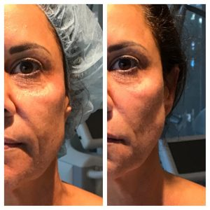 , Non-Surgical Face Lift (Nova Threads)